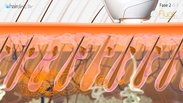 Animazione medicale sulla ricrescita dei capelli con un trattamento medico curativo