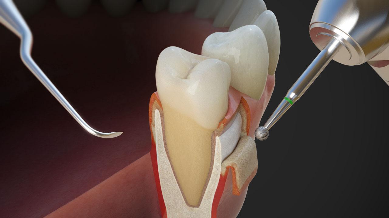 Anatomia chirurgica per odontoiatria