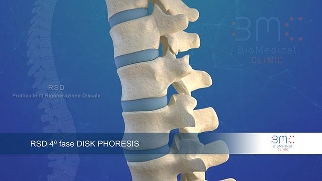 Animazione medicale con colonna vertebrale afflitta da ernia lombare e cervicale