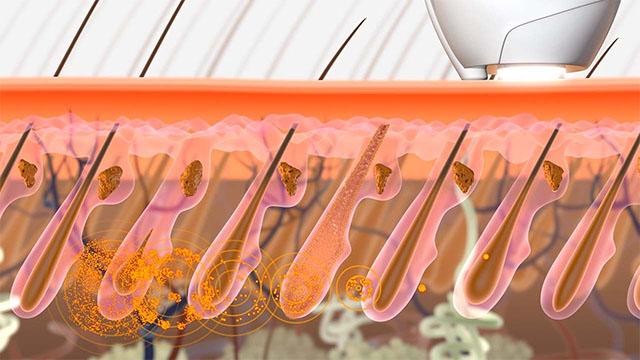 Animazione 3D sul trattamento dei capelli