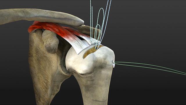 Procedure chirurgiche con apparecchiatura realizzate in grafica 3D